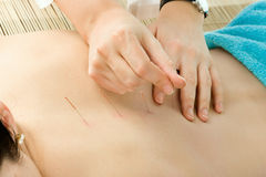 Acupuncture Royalty Free Stock Image