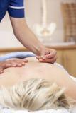 Acupuncturist, der weiblichen Klienten behandelt Stockbild