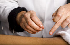 Acupuncturist hands Stock Image