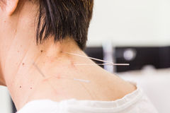 Acupuncturist needle pricking into skin, with shallow depth of f Stock Images