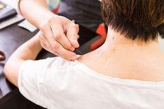 Acupuncturist pricking needle into skin, with shallow depth of f Royalty Free Stock Image