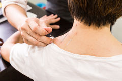 Acupuncturist pricking needle into skin, with shallow depth of f Royalty Free Stock Photography
