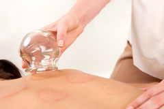 Acupuncturist Removing Fire Cupping Bulb royalty free stock images