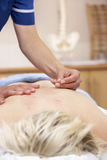 Acupuncturist treating female client Stock Image