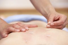 Acupuncturist treating female client Royalty Free Stock Photography