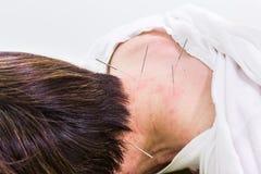 Acupuncturistnadel, die in Haut, mit flacher Tiefe von f sticht Lizenzfreie Stockfotos