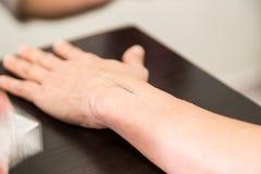 Acupuncturistnadel, die in Haut mit flacher Tiefe von FI sticht Lizenzfreies Stockfoto