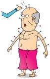 Acupunctuur stock illustratie