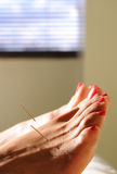 Acupunctuur bij de voet Stock Afbeelding