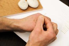 acupunctuur De Chinese geneeskunde treatmen Stock Fotografie