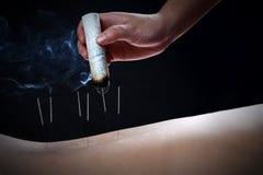 Acupunctuur en moxibustion--een traditionele Chinese geneeskundemethode Stock Foto