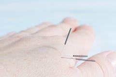 acupunctuurtherapie Stock Afbeelding