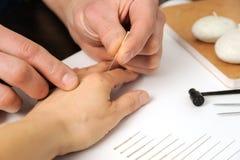 acupuntura Treatmen de la medicina china Foto de archivo