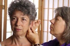 Acupunture sur l'oreille du femme Image libre de droits