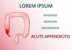 Acute appendicitis Royalty Free Stock Photo