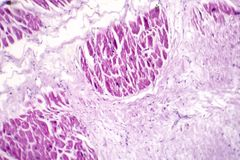 Acute myocardial infarction, histology of heart tissue. Light micrograph. Area of infarct is paler than than the relatively viable area of heart muscle royalty free stock photos