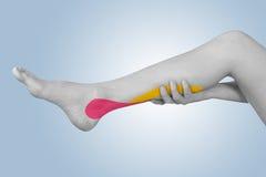 Acute pain in a calft. Stock Photos