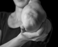 Acute pain in the elbow. Woman holds her elbow joint, acute pain in the elbow, black and white image Royalty Free Stock Photo