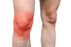 Acute pain in a man knee. on a white background. Stock Images