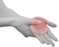 Acute pain in a woman palm Royalty Free Stock Photos
