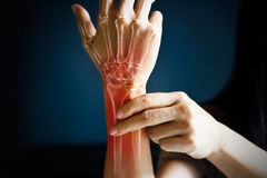 Acute pain in a woman wrist, colored in red on dark blue background. Health issues problems Stock Photography