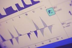 Ademhalingscycli op het ventilatorscherm Stock Foto