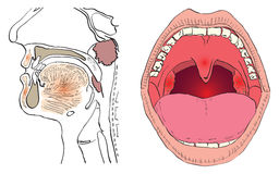 Adenoid. Vector illustration of a disease of the adenoids with the affected agencies Stock Photos