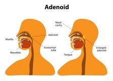 adenoid Normalny i Powiększony adenoidalny ilustracja wektor