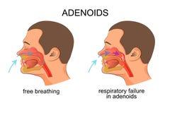 Adenoiditis, αναπνευστική αποτυχία διανυσματική απεικόνιση