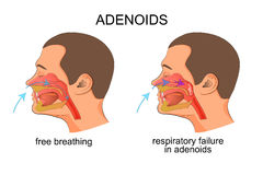 Adenoiditis, respiratory failure Stock Images