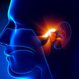 Adenoids - Ear. Pain illustration, infectious Royalty Free Stock Image