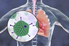 Adenovirus besmetting, adenoviruses in menselijke longen royalty-vrije illustratie