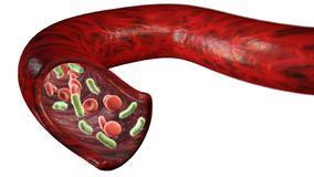 Ader en rode bloedcellen door een virus, omloop wordt aangevallen van bacteriën binnen een slagader die royalty-vrije illustratie