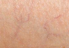 Adern auf der Haut abschluß Lizenzfreie Stockbilder