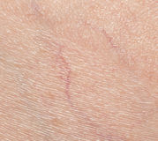 Adern auf der Haut abschluß Stockfotografie