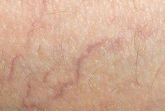 Adern auf der Haut abschluß Lizenzfreie Stockfotos