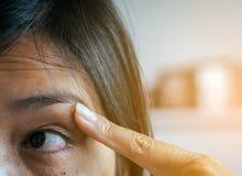 Adern auf roter Augenfrau, Augenlidschicht, Ursachen der Gebrauch der Augen und nicht genügendem Rest Lizenzfreies Stockfoto