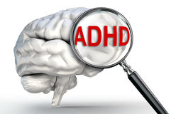 Adhd word on magnifying glass and human brain vector illustration