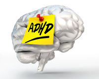 Adhd yellow note on brain Stock Images