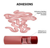 Adhesion. S.Human small intestine. s are scar tissue that forms between two organs that are not normally connected to each other. part of small intestine taken Stock Photos