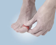 Adhesive Healing plaster on foot finger. Royalty Free Stock Image