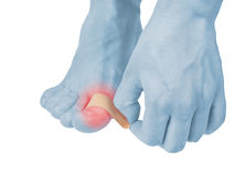 Adhesive Healing plaster on foot finger. Stock Photos