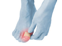 Adhesive Healing plaster on foot finger. Royalty Free Stock Images