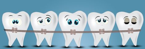 Adjust the teeth with the appliance. Illustration of adjust the teeth with the appliance stock illustration