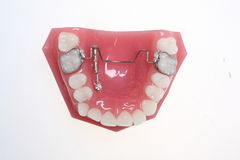 Adjustable Teeth-Braces Stock Photos