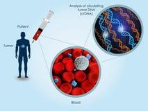 ADN de circulação do tumor ilustração stock