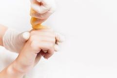 Adoçando cuidados com a pele do epilation com açúcar líquido nos dedos, mão Fotos de Stock