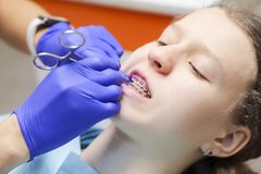 Adolescente à une réception du ` s de dentiste Accolades sur les dents image libre de droits