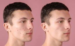 Adolescente antes e depois do tratamento da acne imagens de stock royalty free