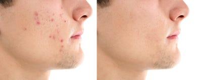 Adolescente antes y después del tratamiento del acné fotografía de archivo libre de regalías